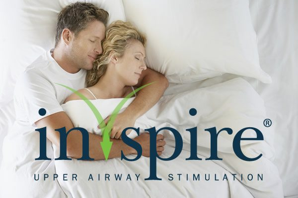 Inspire Upper Airway Stimulation