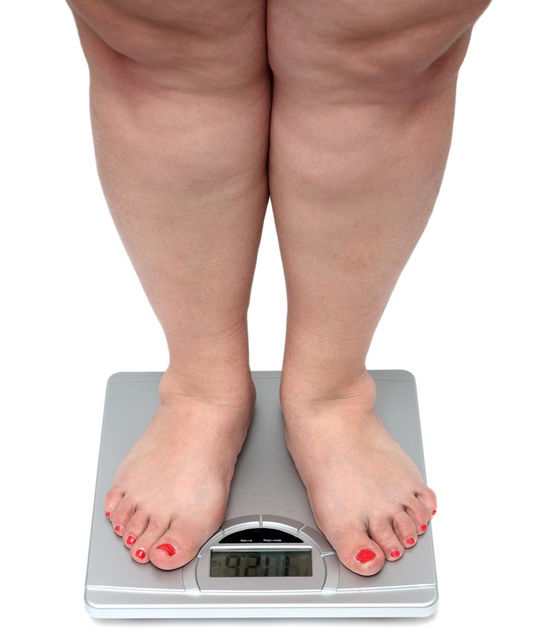 Overweight Person Standing on a Scale