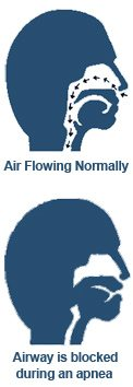 Normal Airflow and Airflow During an Apnea