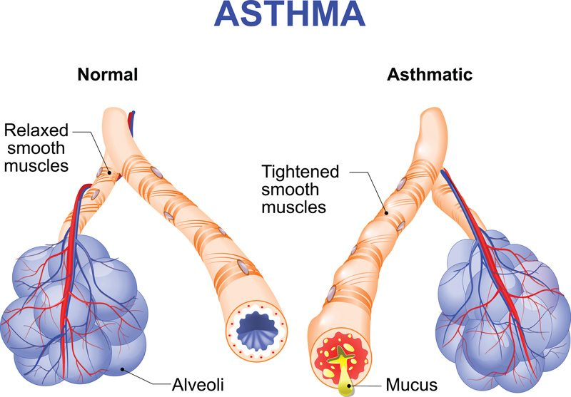 how to sleep when you have asthma