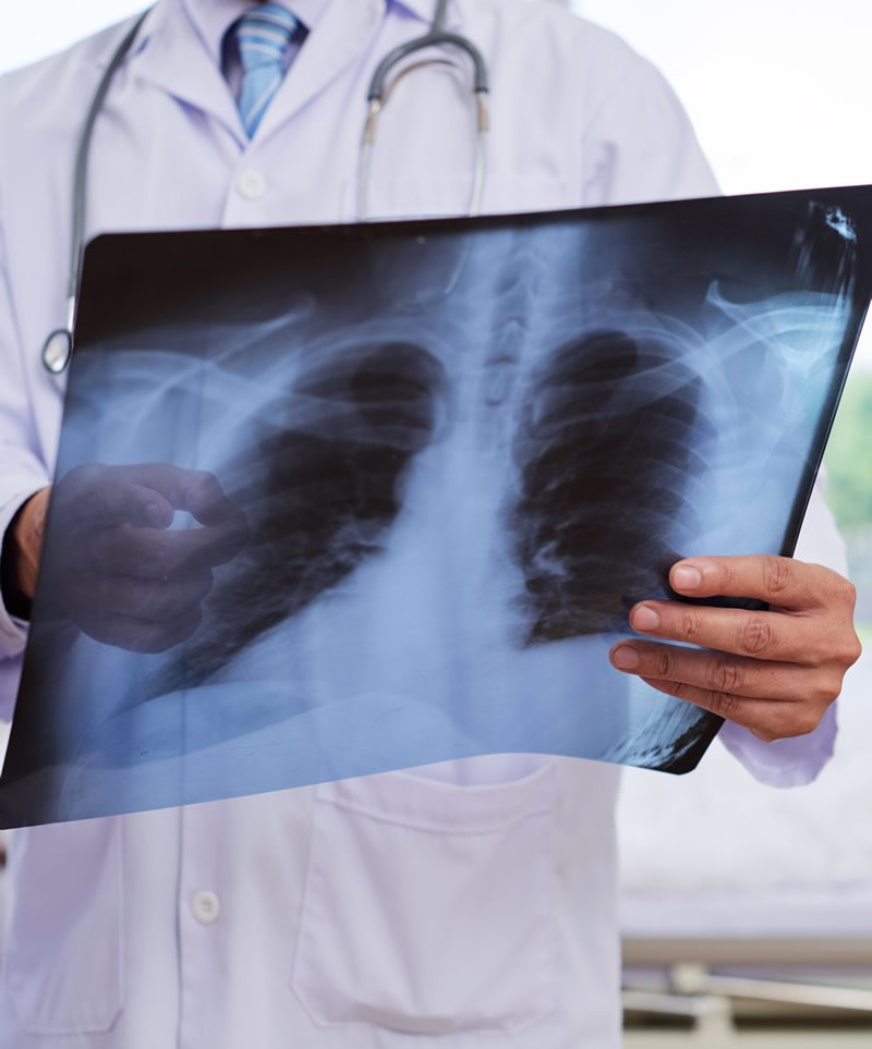 Doctor Looking at Chest Xray